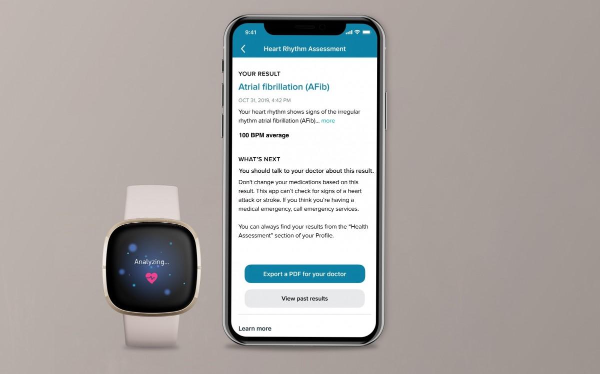 Fitbit Sense now measures ECG in US and Europe